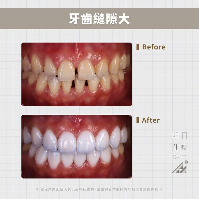 陶瓷貼片-修復牙齒縫隙大-DSD微笑設計-台中一日美齒-朗日牙藝