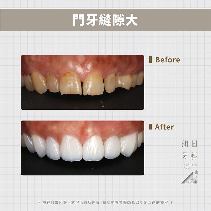 陶瓷貼片-修復門牙牙縫大-DSD微笑設計-台中一日美齒-朗日牙藝