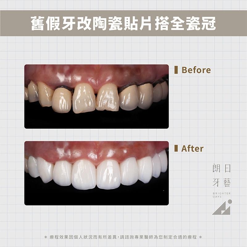 陶瓷貼片-全瓷冠-假牙黑邊-牙縫大-台中牙齒美白-朗日輕瓷美白貼片