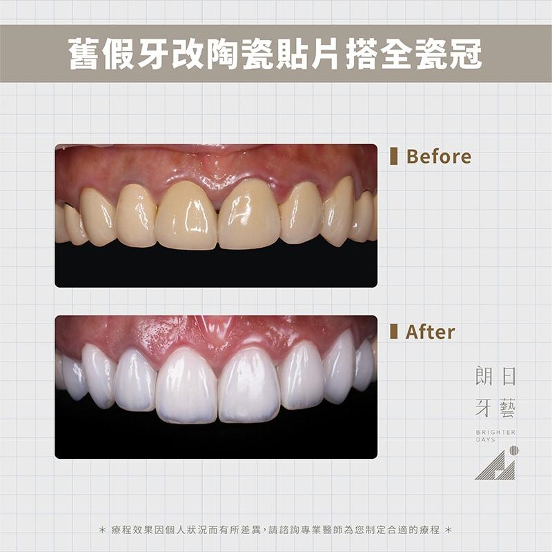 陶瓷貼片-全瓷冠-換假牙-台中牙齒美白推薦-朗日輕瓷美白貼片