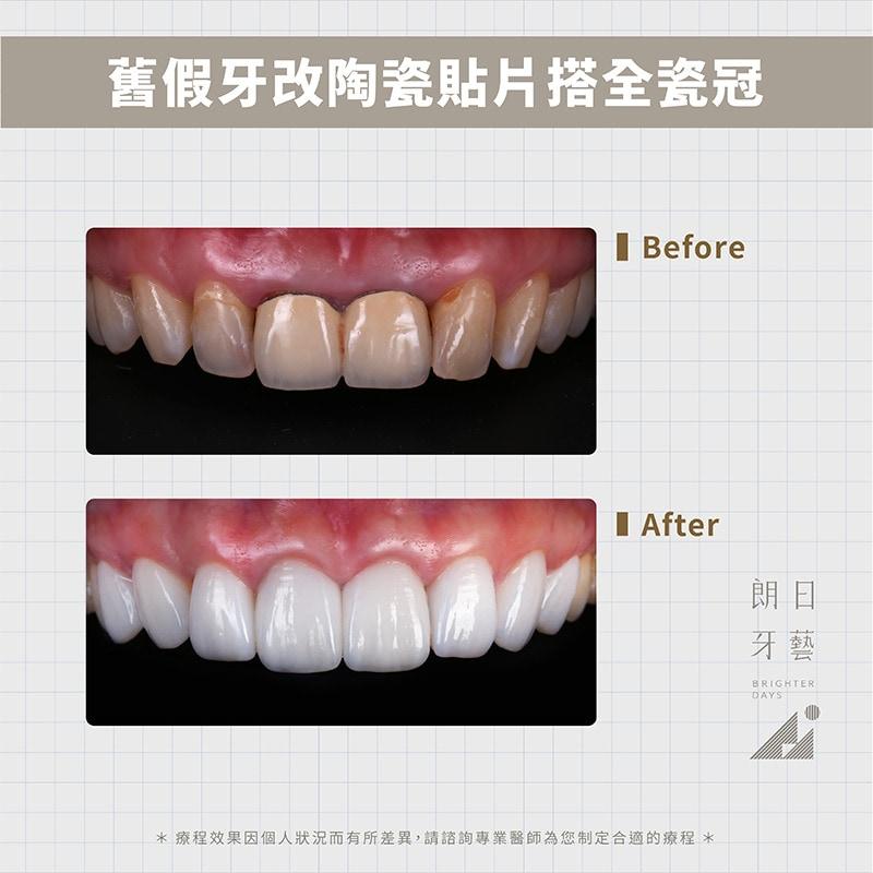 陶瓷貼片-全瓷冠-金屬假牙黑邊-DSD微笑設計-台中牙齒美白-朗日輕瓷美白貼片