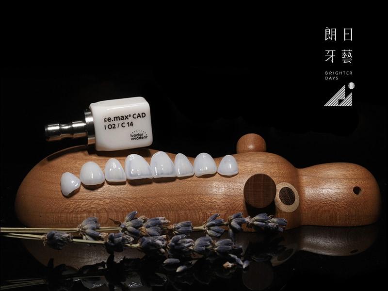 陶瓷貼片-台中-朗日牙藝-輕瓷美白貼片