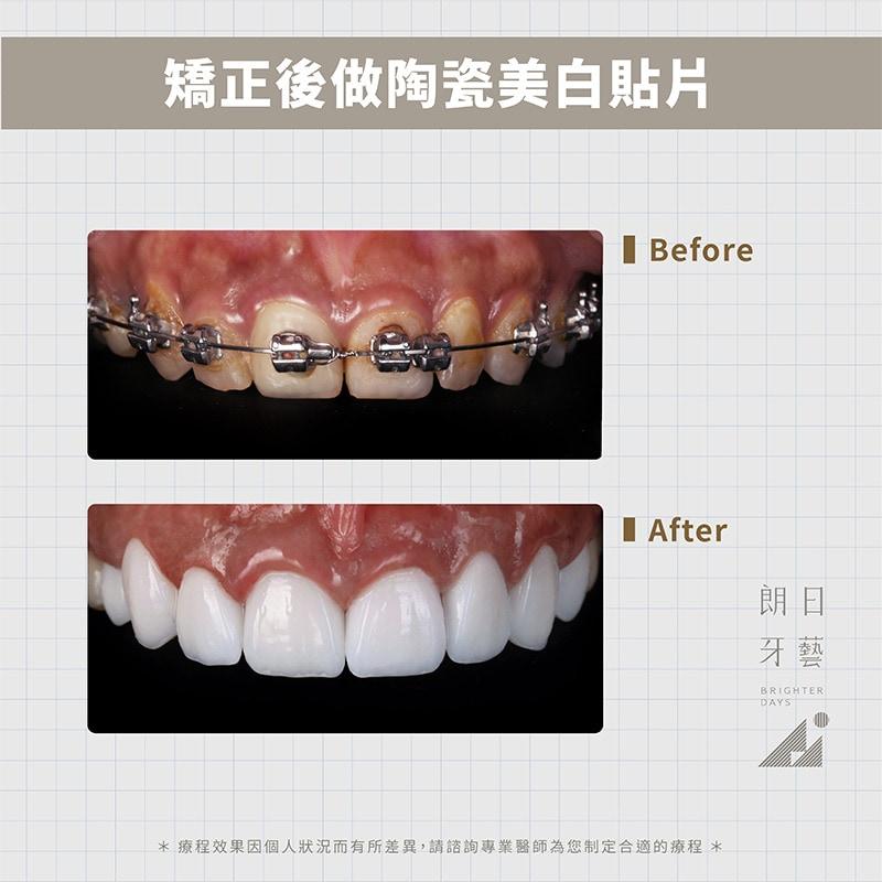 陶瓷貼片-戴牙套牙齒變黃-DSD微笑設計-台中陶瓷貼片推薦-朗日牙藝