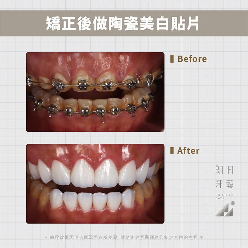 陶瓷貼片-戴牙套矯正後美白-DSD微笑設計-台中陶瓷貼片推薦-朗日牙藝