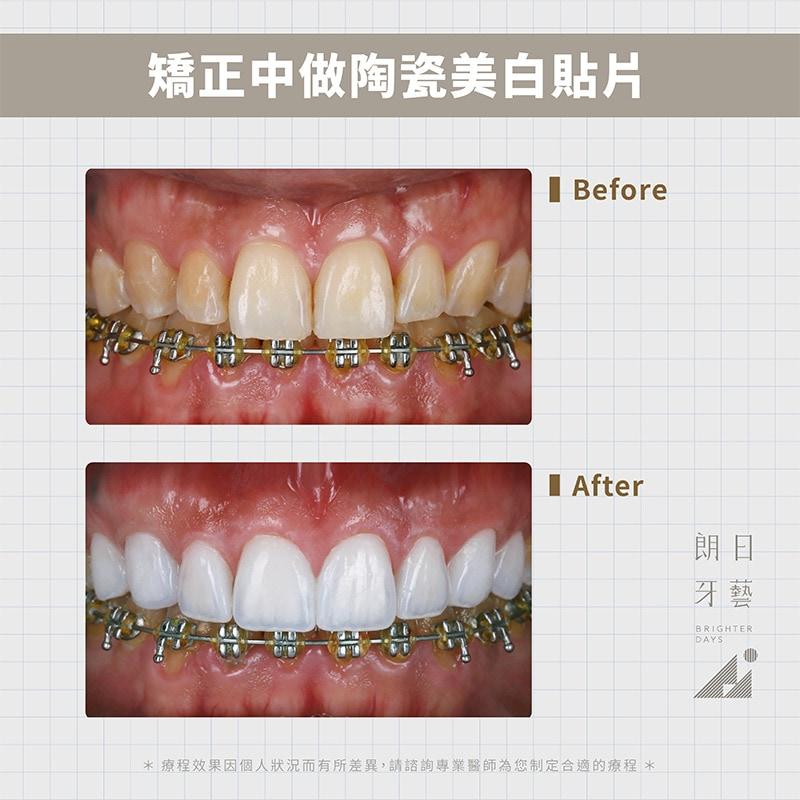 陶瓷貼片-拆牙套美白-DSD微笑設計-台中陶瓷貼片推薦-朗日牙藝