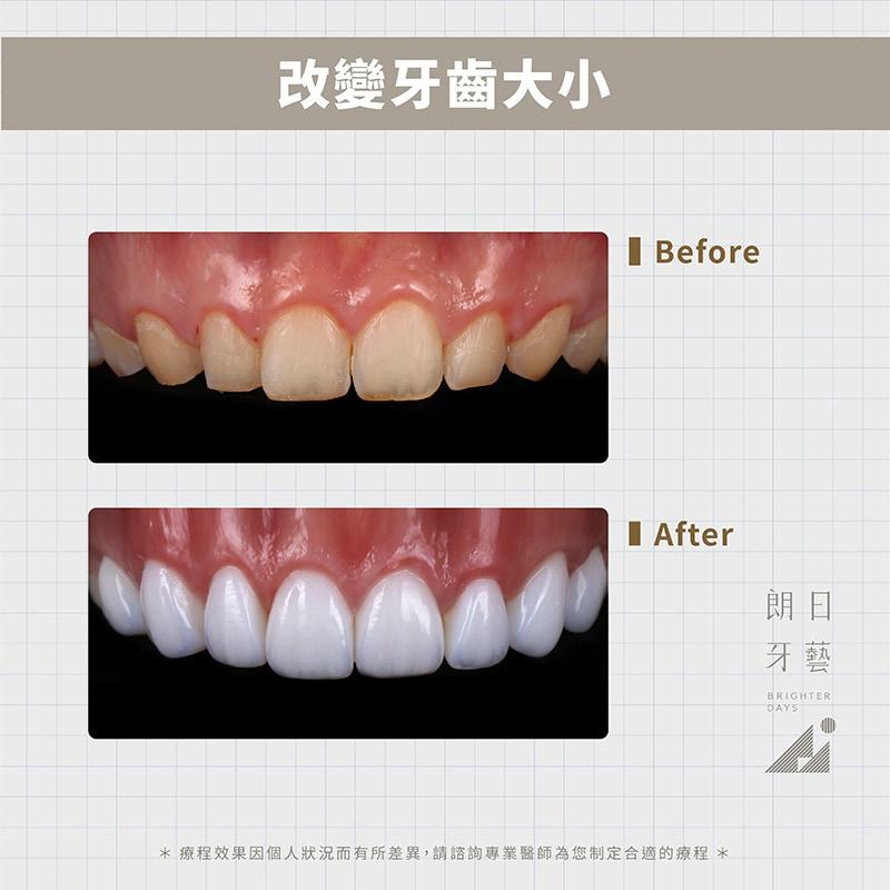 陶瓷貼片-牙齒美容-牙齒美白-台中一日美齒-朗日牙藝