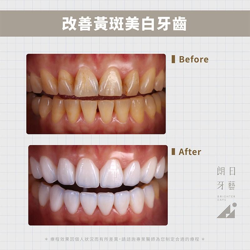 陶瓷貼片-牙齒黃-台中牙齒美白-推薦-朗日牙藝-輕瓷美白貼片