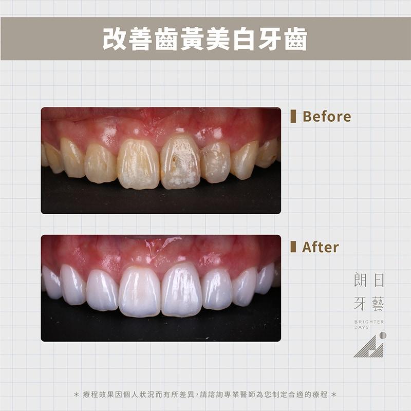 陶瓷貼片-牙齒黃-牙齒美白推薦-台中-朗日牙藝-輕瓷美白貼片