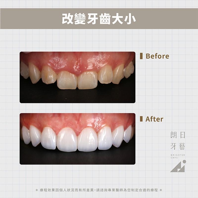 陶瓷貼片-美白牙齒-牙齒美容-台中一日美齒-朗日牙藝