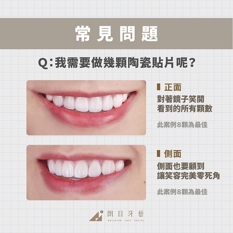 陶瓷貼片-貼片做幾顆-DSD數位微笑設計-台中瓷牙貼片-推薦-朗日牙藝