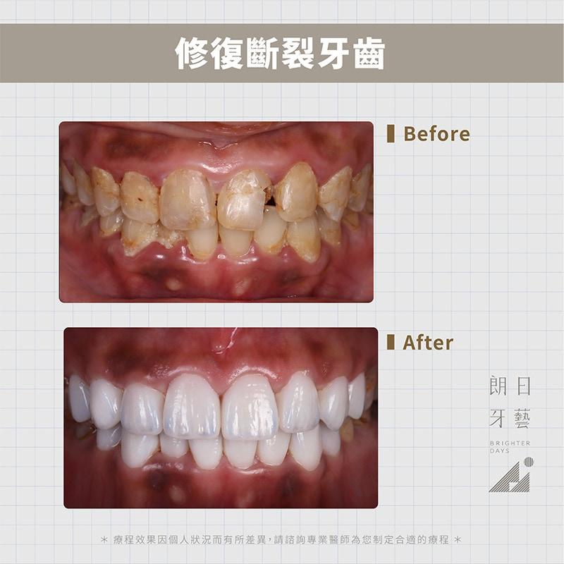 陶瓷貼片-門牙斷裂修補-牙齒美白-台中陶瓷貼片-朗日牙藝