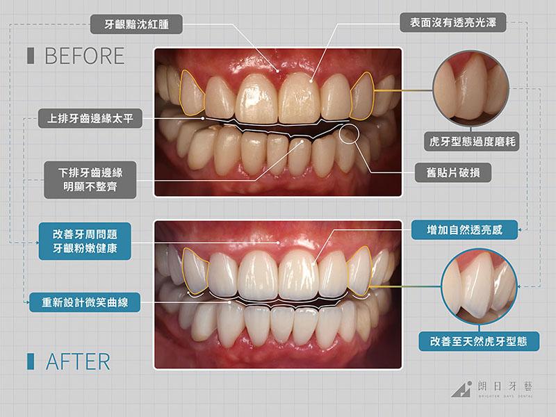 牙齒貼片失敗-陶瓷貼片後遺症-拆除重做案例-台中陶瓷貼片-朗日牙藝