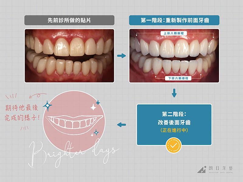 牙齒貼片失敗-陶瓷貼片後遺症-拆除重做療程前後對比-台中陶瓷貼片-朗日牙藝