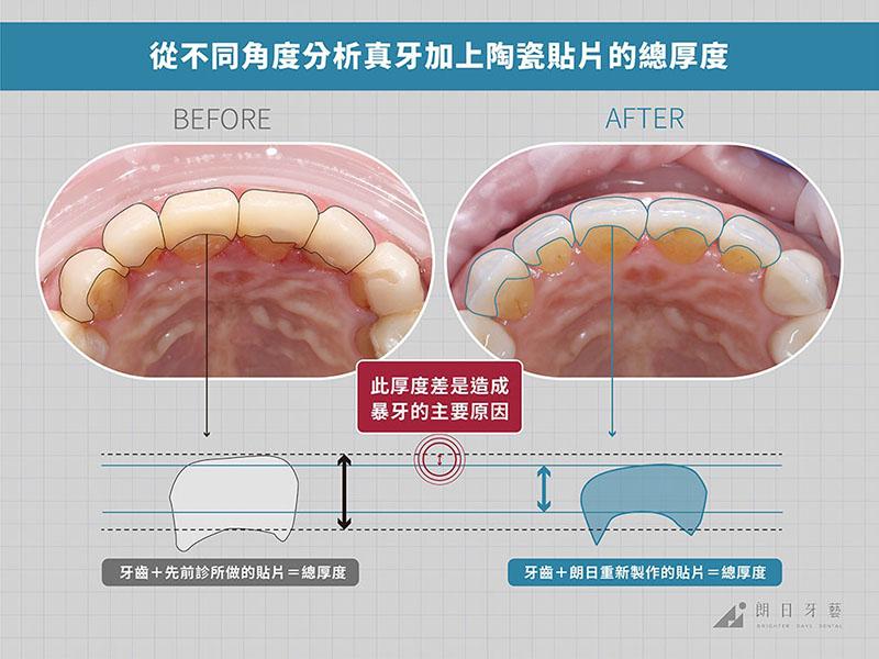 牙齒貼片失敗-陶瓷貼片後遺症-暴牙-拆除重做案例-台中陶瓷貼片-朗日牙藝