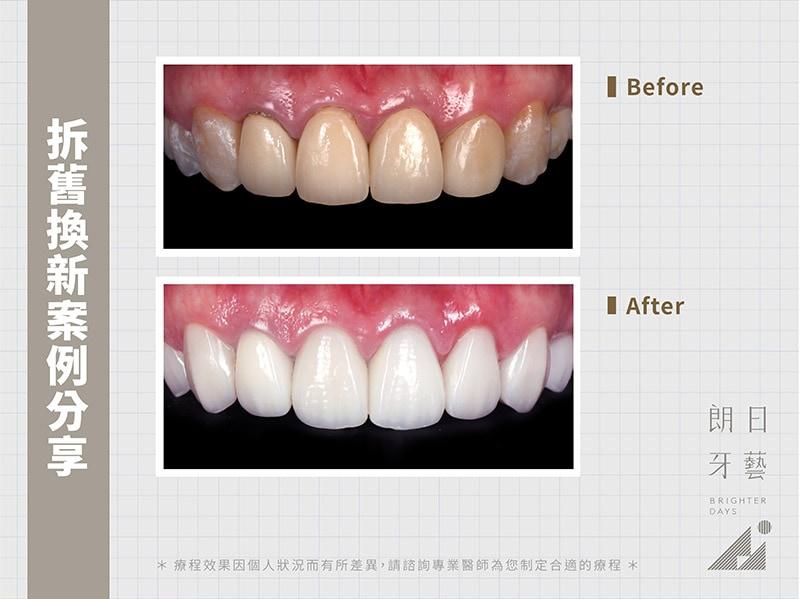 牙齒貼片失敗-陶瓷貼片後悔-拆舊換新案例分享-台中陶瓷貼片-朗日牙醫