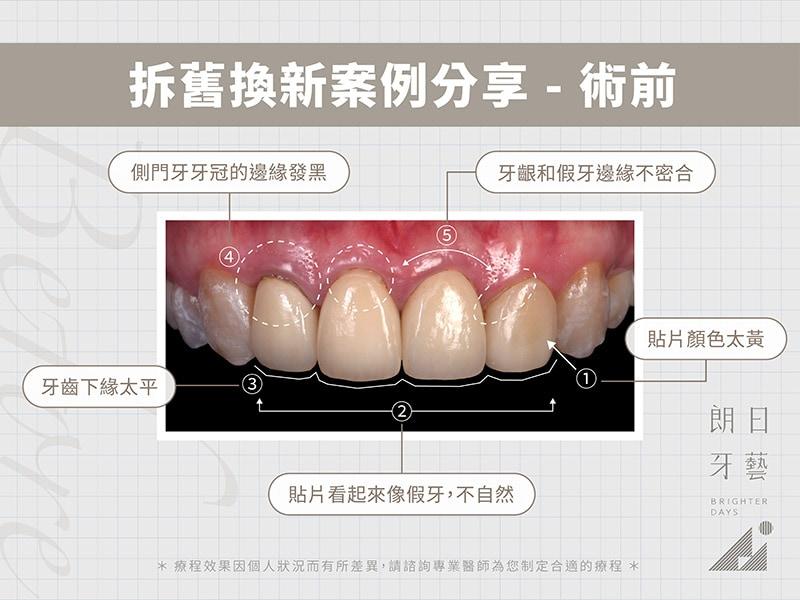 牙齒貼片失敗-陶瓷貼片後悔-拆舊換新療程前-台中陶瓷貼片-朗日牙醫