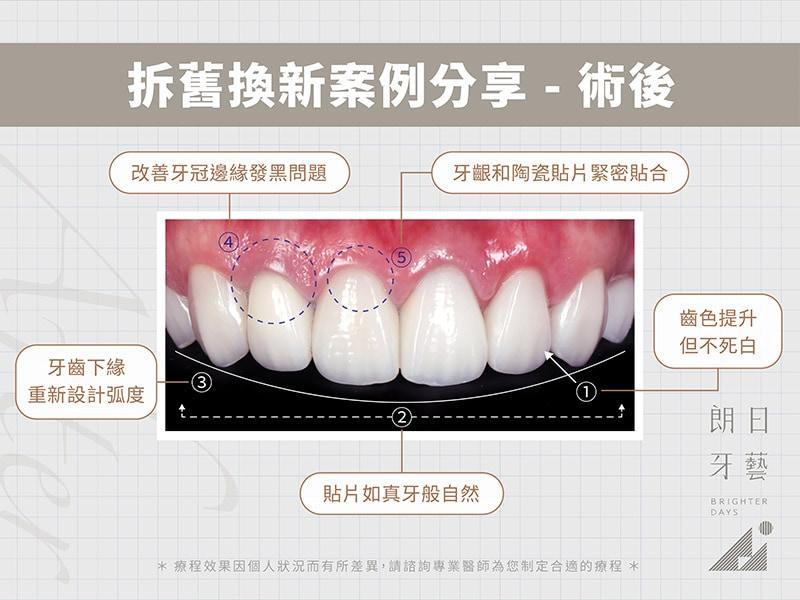 牙齒貼片失敗-陶瓷貼片後悔-拆舊換新療程後-台中陶瓷貼片-朗日牙醫