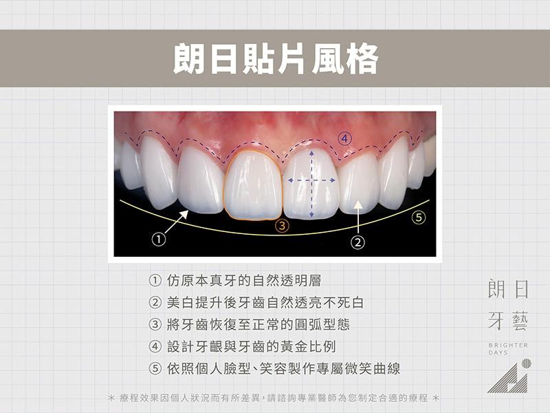 牙齒貼片失敗-陶瓷貼片後悔-朗日瓷牙貼片風格-台中陶瓷貼片-朗日牙醫