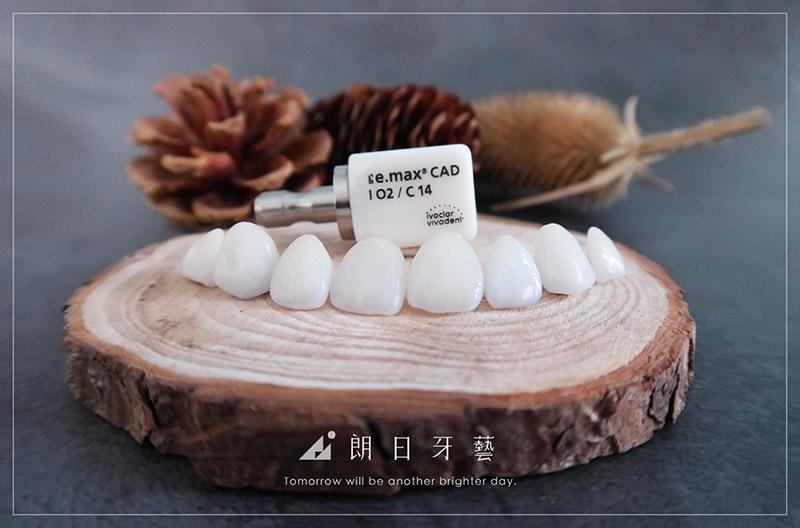 牙齒貼片失敗怎麼辦?如何避免做出令人後悔的陶瓷貼片