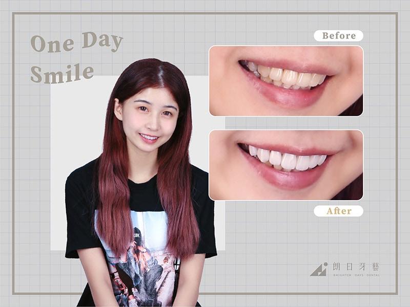 牙齒貼片失敗-陶瓷貼片後悔-療程前後對比-台中陶瓷貼片-朗日牙醫