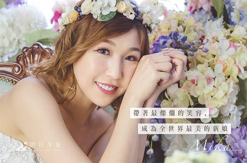 陶瓷貼片一日美齒,黃金比例微笑曲線讓她成為最美新娘