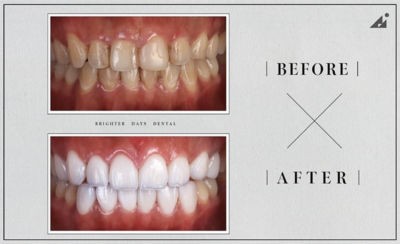 陶瓷貼片-牙齒美白-微笑曲線牙齒-牙齦整型-療程前後比較-朗日牙醫-台中