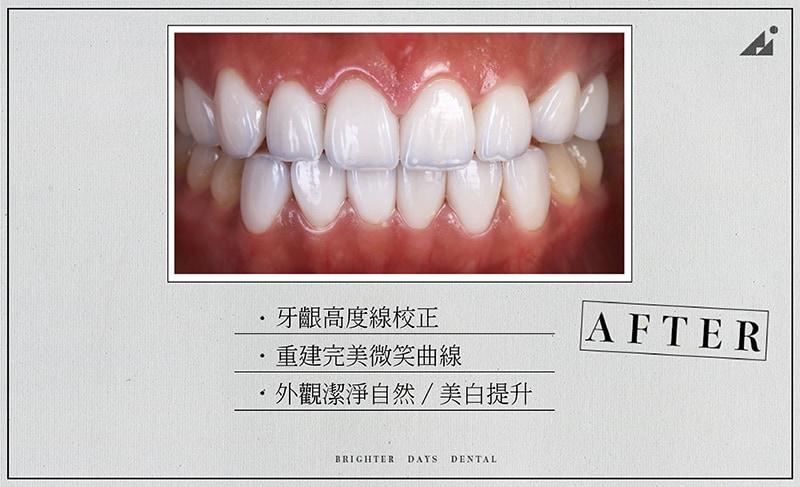 陶瓷貼片-牙齒美白-微笑曲線牙齒-牙齦整型-療程後-朗日牙醫-台中