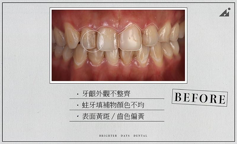 陶瓷貼片-牙齒黃-牙齦高度不一-蛀牙補牙變色-療程前-朗日牙醫-台中