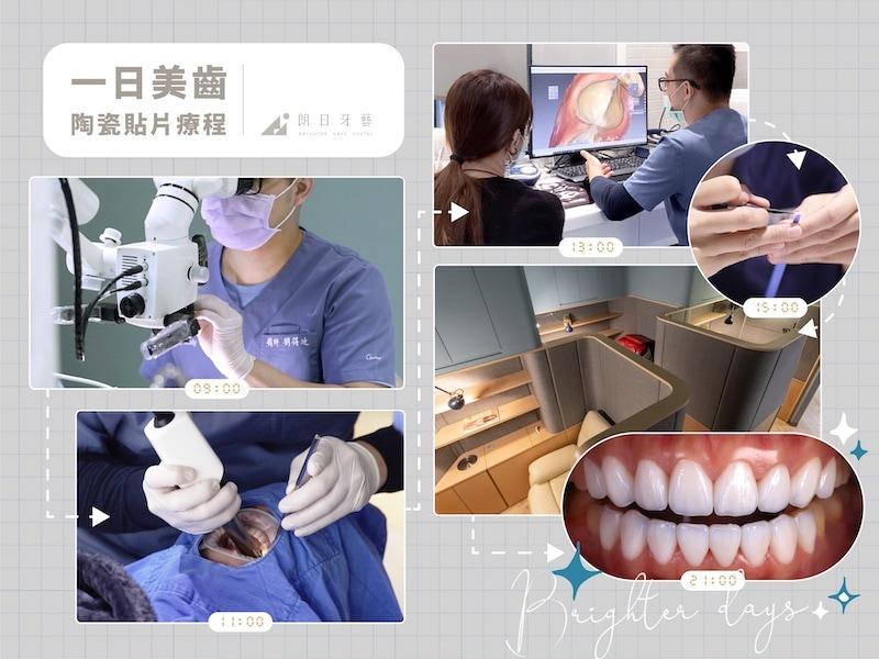 牙齒貼片失敗-陶瓷貼片後悔-一日美齒-陶瓷貼片-療程-台中-朗日牙醫