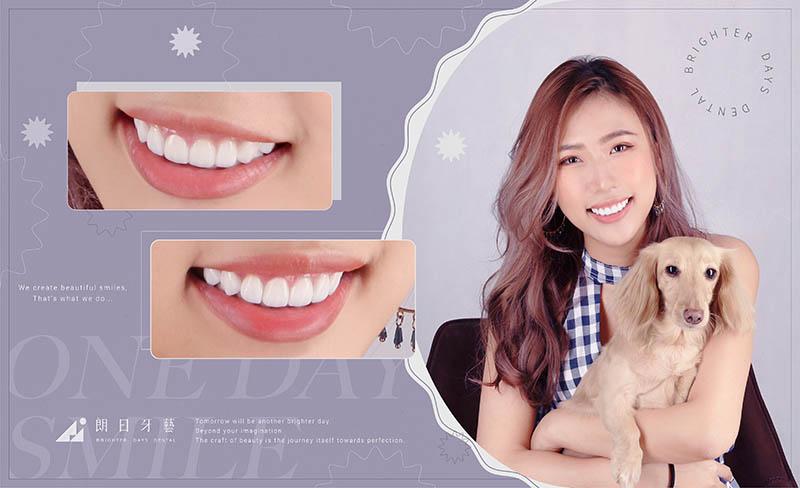 陶瓷貼片矯正-牙齒美白-患者術後笑容-朗日牙醫-台中