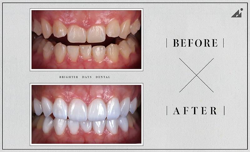 陶瓷貼片矯正-牙齒美白-療程前後對比-朗日牙醫-台中