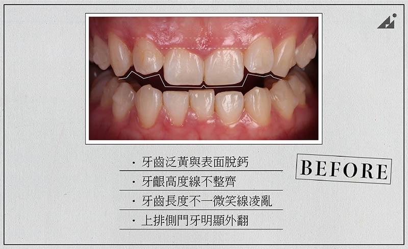 陶瓷貼片矯正-療程前-牙齒黃-牙齒亂-門牙外翻-朗日牙醫-台中