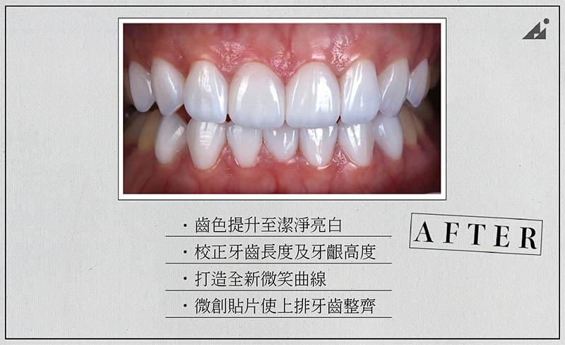 陶瓷貼片矯正-療程後-牙齒美白-微笑曲線牙齒-朗日牙醫-台中
