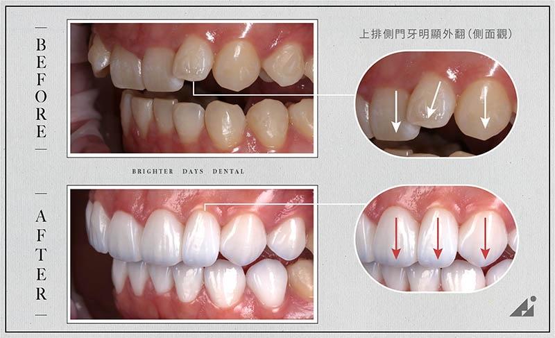 陶瓷貼片矯正-門牙外翻-療程前後對比-朗日牙醫-台中