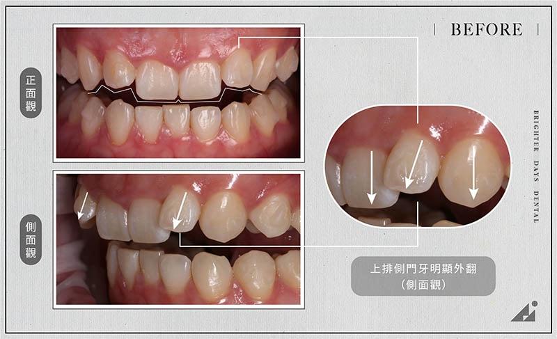 陶瓷貼片矯正-門牙外翻-療程前-各角度門牙-朗日牙醫-台中