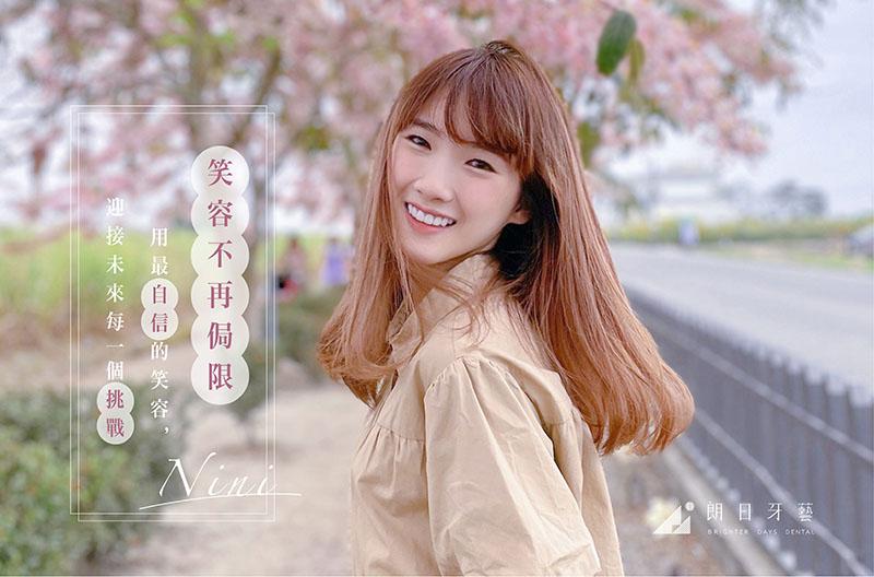 笑容不再侷限,矯正後利用輕瓷美白貼片讓鏡頭前的她更完美