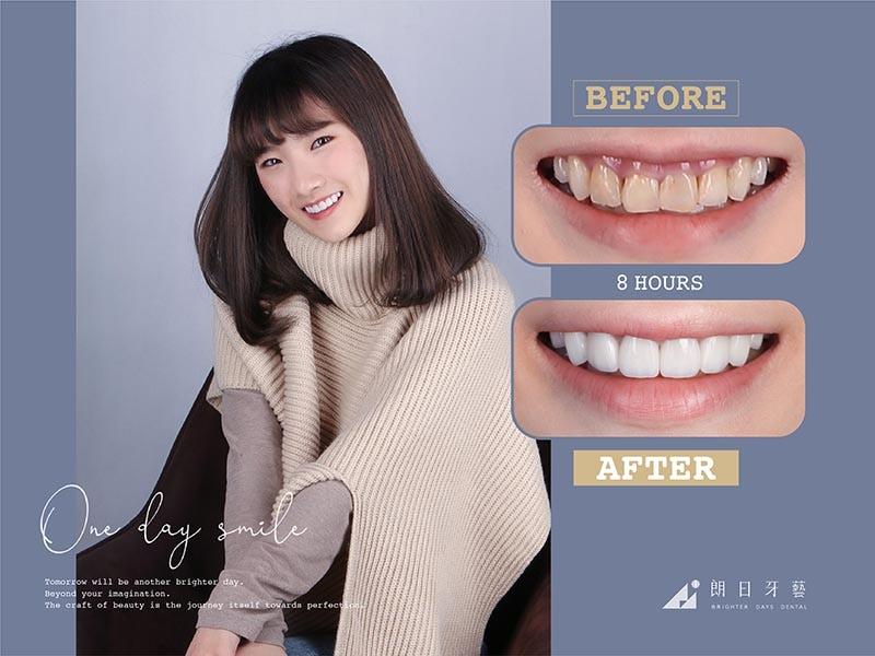 陶瓷貼片-牙齒不整齊-牙齒黃-患者術後笑容-1-朗日牙醫-台中