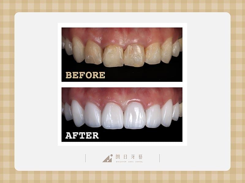 陶瓷貼片-牙齒不整齊-牙齒黃-磨牙牙齒磨損-療程前後比較-朗日牙醫-台中