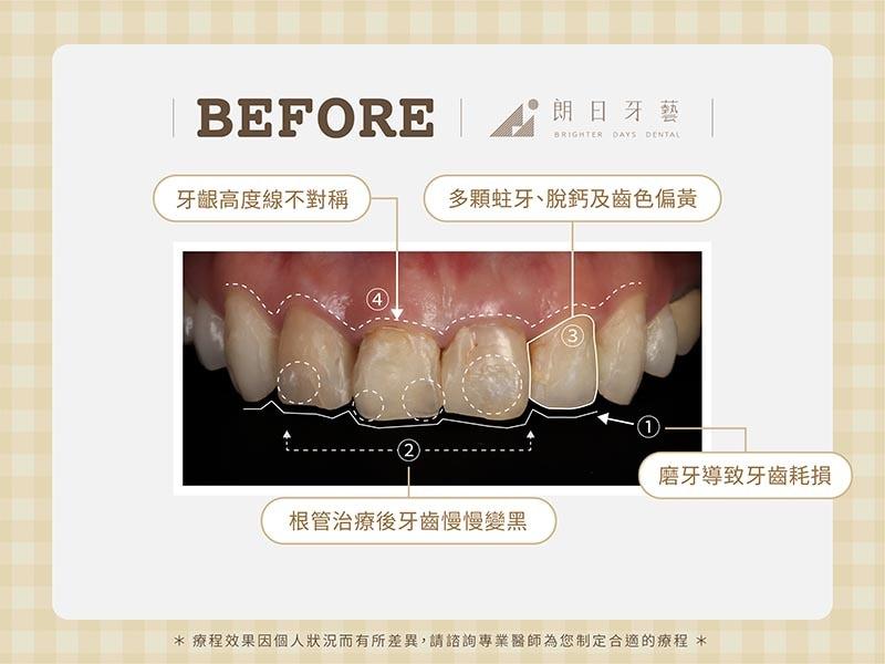 陶瓷貼片-牙齒不整齊-牙齒黃-磨牙牙齒磨損-療程前-朗日牙醫-台中