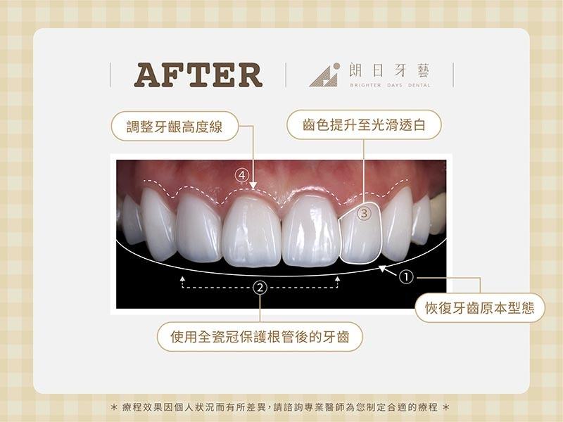 陶瓷貼片-牙齒不整齊-牙齒黃-磨牙牙齒磨損-療程後-朗日牙醫-台中