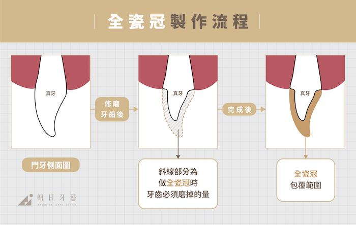 全瓷冠-陶瓷貼片-比較-全瓷冠製作流程-朗日牙藝-台中-mobile-final