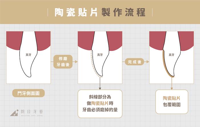 全瓷冠-陶瓷貼片-比較-陶瓷貼片製作流程-朗日牙藝-台中-mobile-final