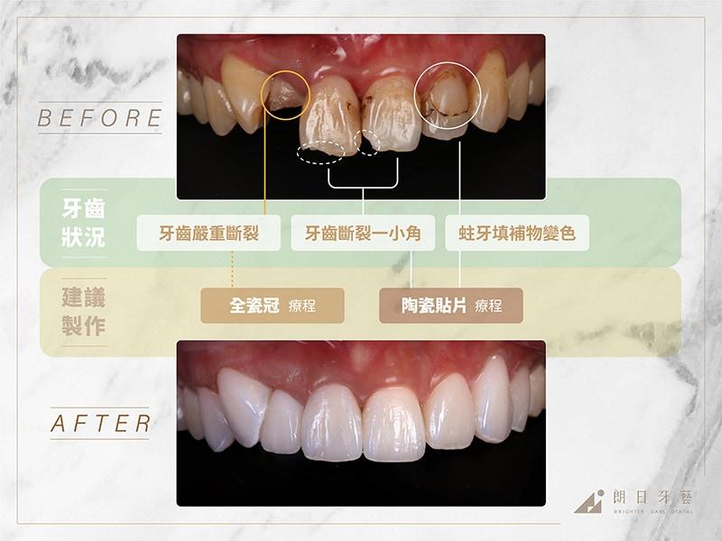 全瓷冠-陶瓷貼片-治療前後比較-推薦案例2-朗日牙藝-台中
