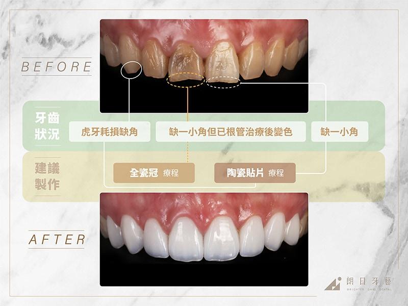 全瓷冠-陶瓷貼片-治療前後比較-推薦案例3-朗日牙藝-台中