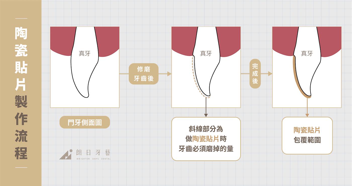 全瓷冠-陶瓷貼片-比較-陶瓷貼片製作流程-朗日牙藝-台中-pc-final-3