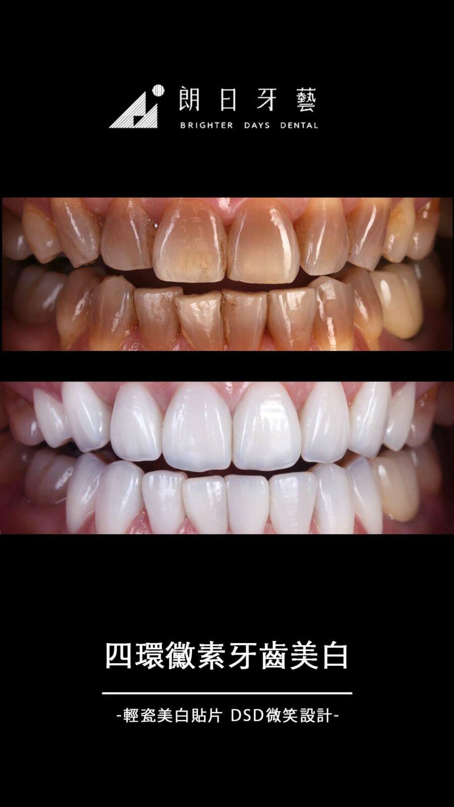 陶瓷貼片案例-四環黴素牙齒染色-四環黴素牙齒美白-朗日牙藝-輕瓷美白貼片
