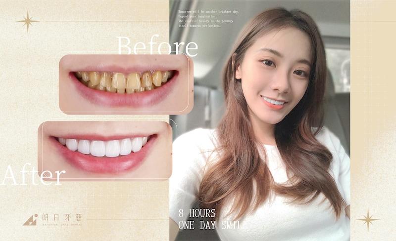陶瓷貼片-磨牙-牙齒磨損-抽神經牙齒變黑-一日美齒-患者術後笑容-朗日牙醫-台中