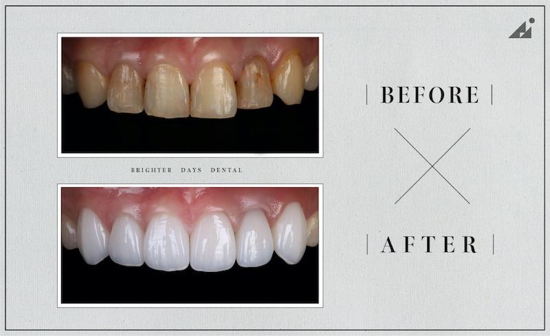 陶瓷貼片-磨牙-牙齒磨損-抽神經牙齒變黑-一日美齒-療程前後比較-朗日牙醫-台中