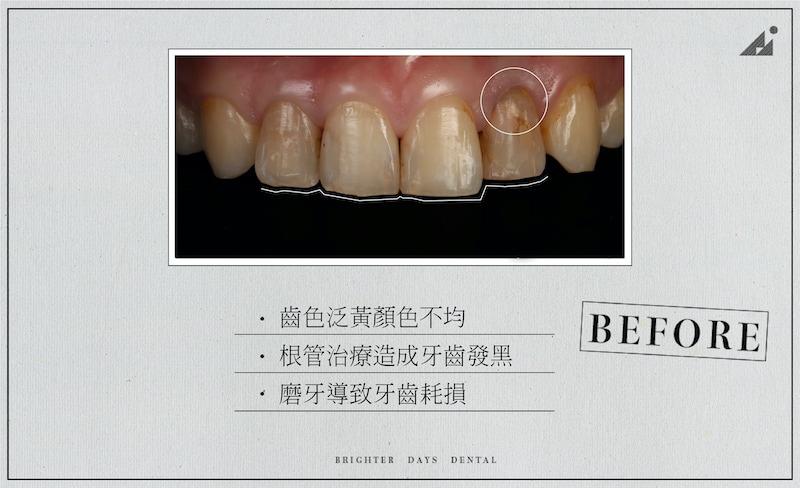陶瓷貼片-磨牙-牙齒磨損-抽神經牙齒變黑-一日美齒-療程前-朗日牙醫-台中