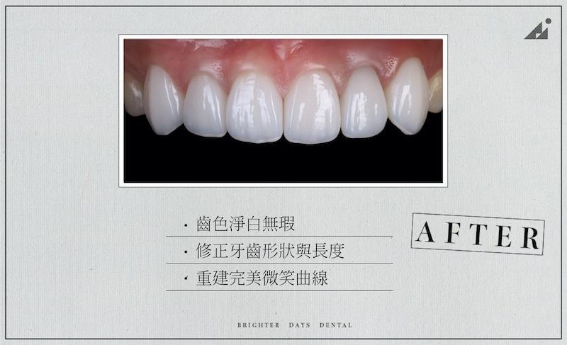 陶瓷貼片-磨牙-牙齒磨損-抽神經牙齒變黑-一日美齒-療程後-朗日牙醫-台中